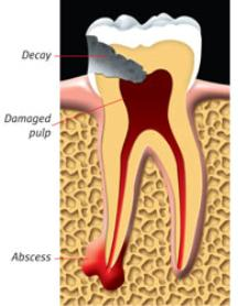 a abscessed tooth
