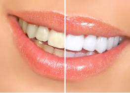 Teeth Whitening Milton