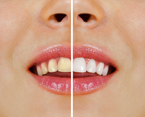 Overcome Discoloured Teeth with Help from Our Brampton Dental Clinic
