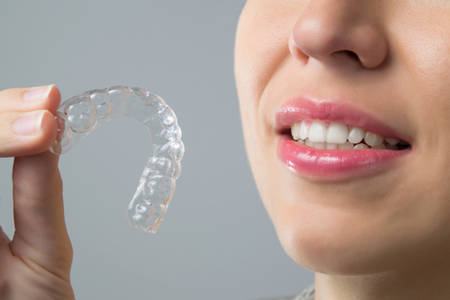 What Is Invisalign and Is It Right for You