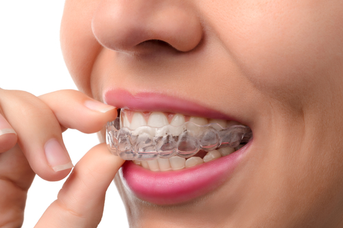 Is Invisalign a Good Choice for Teens?