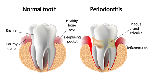 What You Need to Know About Periodontitis