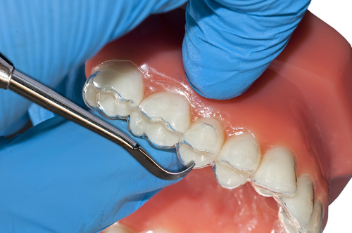 The Different Steps to Follow for Invisalign Treatment